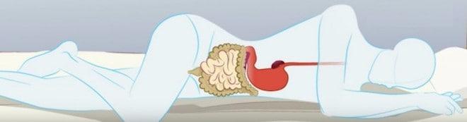 Как лучше спать при панкреатите